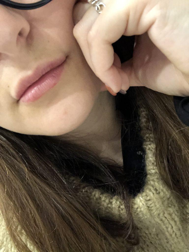 injections lèvres parisgrenoble